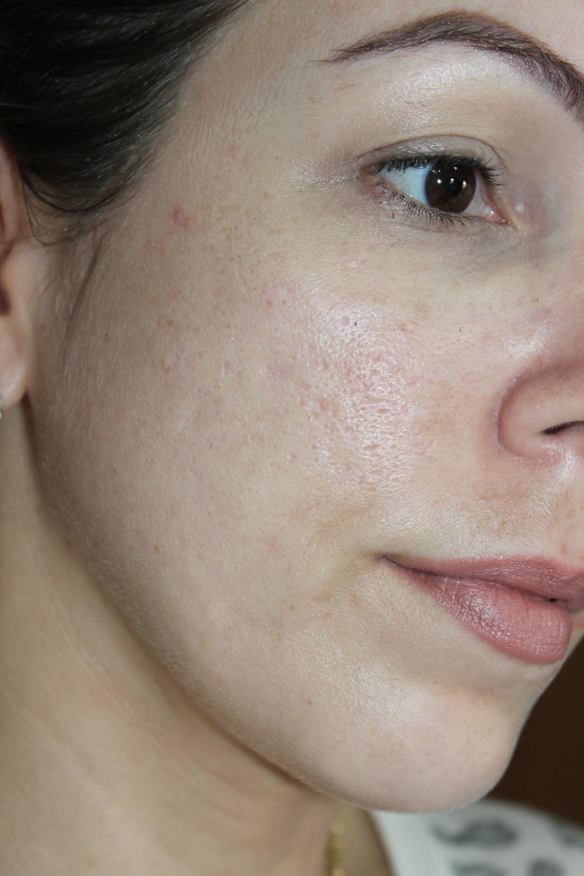 Face direita após o microagulhamento
